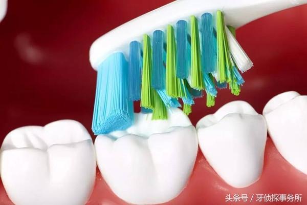 7個壞習慣讓你牙痛一輩子 - 每日頭條
