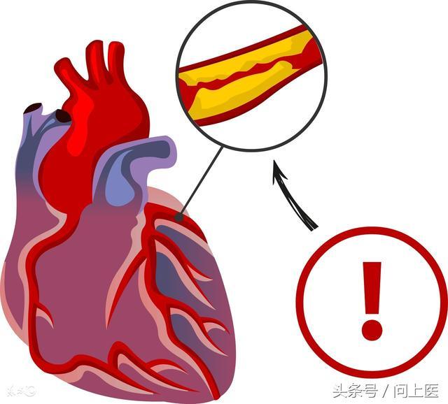 什麼是健康的膽固醇水平?膽固醇高的人該如何健康飲食! - 每日頭條