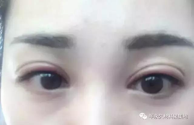半永久美瞳線後眼皮紅腫。要手撕紋繡師嗎? - 每日頭條