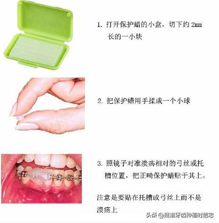 牙齒矯正的過程老是口腔潰瘍怎麼辦? - 每日頭條