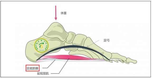 有種腳痛叫「足底筋膜炎」!不花冤枉錢,醫生教您真正有用的方法 - 每日頭條