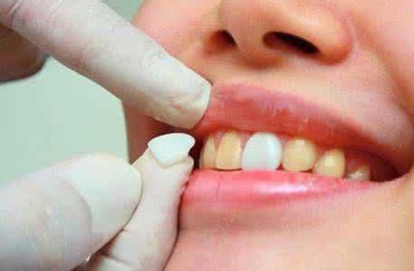 生活小技巧教大家怎樣告別牙黃。牙垢 - 每日頭條