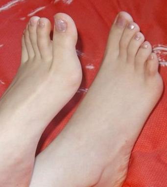 什麼是腳氣?得了腳氣怎麼辦?教你斷根、斷本的測底治療腳氣! - 每日頭條