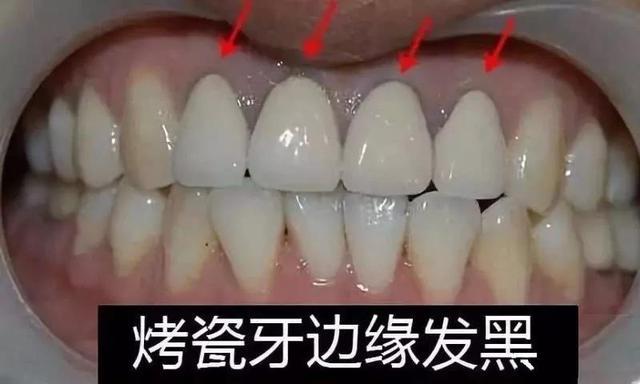 烤瓷牙做便宜不做貴?資深牙醫如是說 - 每日頭條