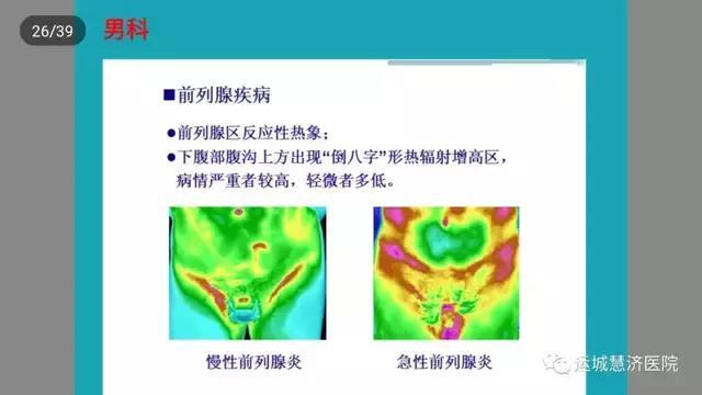 運城慧濟醫院——紅外線熱成像 - 每日頭條