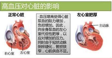高血壓對心臟幹了哪些壞事?高血壓和心力衰竭有什麼關係? - 每日頭條