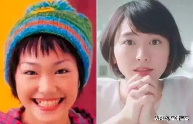 風靡日本的「大眼術」—眼瞼下至手術 - 每日頭條