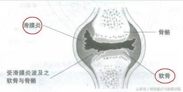 膝蓋又腫又疼90%是膝關節滑膜炎! - 每日頭條