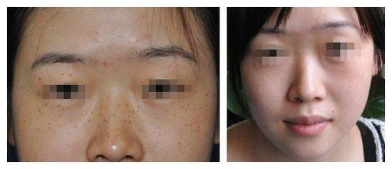 讓美容外科博士告訴你:如何讓色斑「搬家」 - 每日頭條