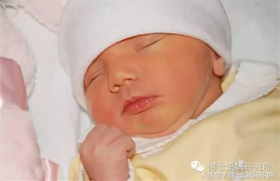 正確認識新生兒黃疸(內附新生兒黃疸的治療及注意事項 ...