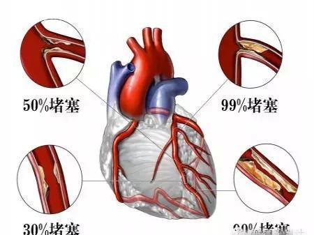 心腦疾病的6大信號。如果發現。請立即去醫院! - 每日頭條