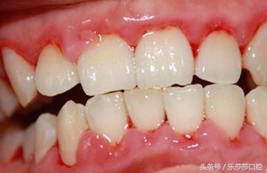 牙周炎要切掉牙齦?很多人得了牙周炎卻不知道! - 每日頭條
