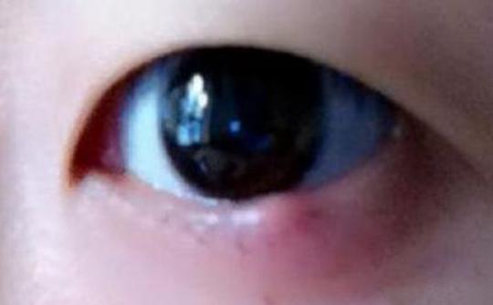 長針眼怎麼辦?中醫說這樣按摩好得快 - 每日頭條