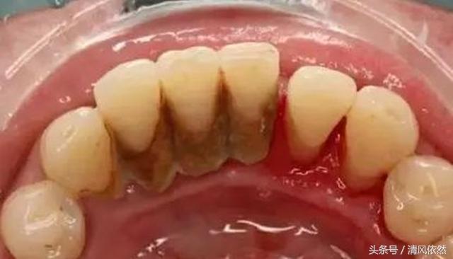 牙結石的危害和治療方法。只需一招。輕鬆除掉10噁心牙石! - 每日頭條