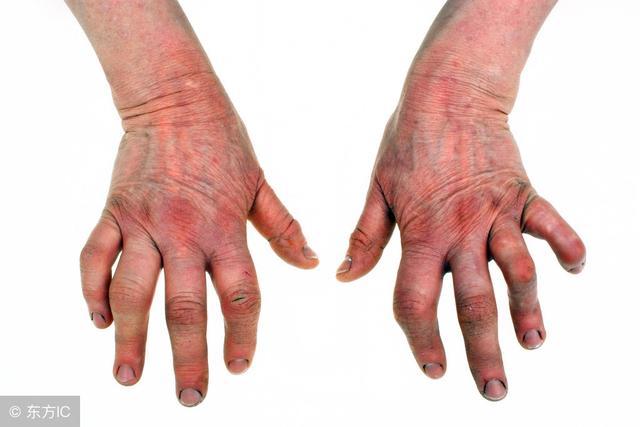 骨關節炎、風濕性關節炎、類風濕關節炎。看看你是哪一款? - 每日頭條