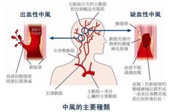 腦梗塞和腦出血的區別 - 每日頭條