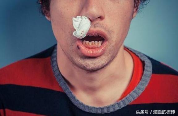 經常流鼻血怎麼辦?按穴止血並有效預防 - 每日頭條