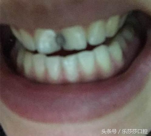 門牙中間怎麼會長黑黑的東西? - 每日頭條