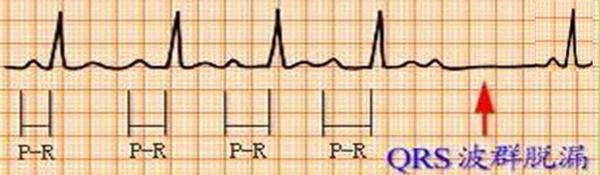 心臟房室傳導阻滯是怎麼引發的?對身體有多大的危害? - 每日頭條