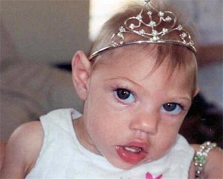 小頭畸形早期表現 新生兒小頭畸形癥狀有哪些 - 每日頭條