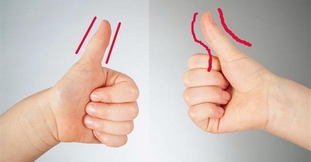 易胖還是易瘦體質。看大拇指就知道了! - 每日頭條
