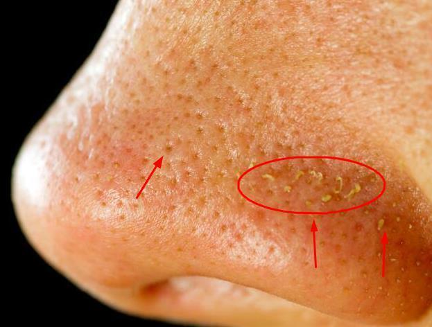 鼻頭裡擠出來的「小黃粒」原來是蟎蟲的分泌物。銘記3招可擺脫 - 每日頭條