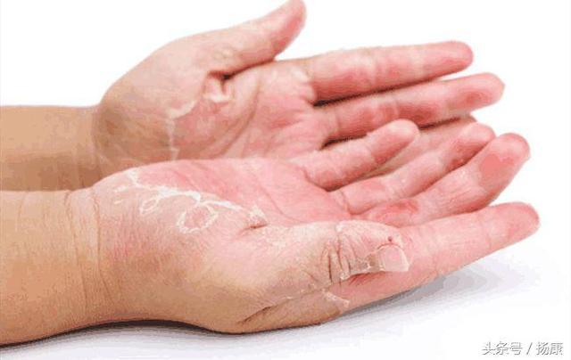 帶狀皰疹有哪些早期表現?當你的皮膚出現這些癥狀時就需注意了 - 每日頭條