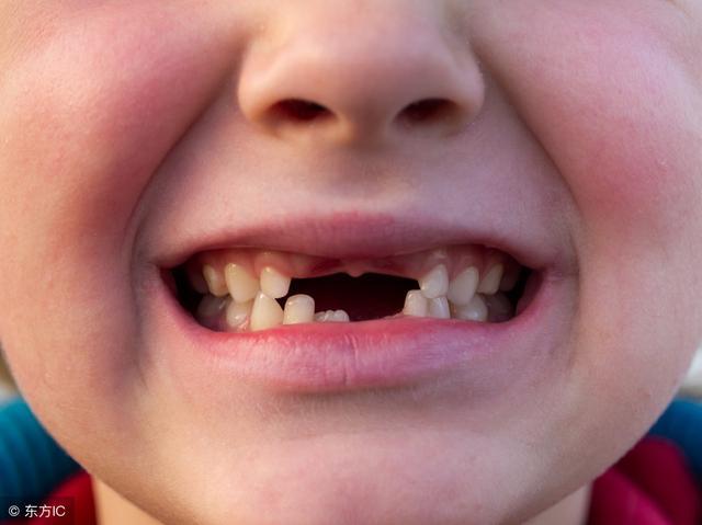 夢見掉牙是兇兆?這麼多解讀我最相信這一種 - 每日頭條