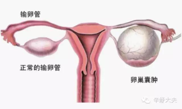 卵巢囊腫需要治療嗎 - 每日頭條