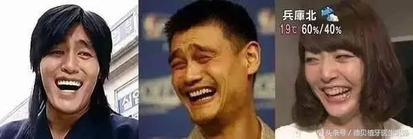 你笑的時候露牙齦嗎?露齦笑也分等級,快來看看你是哪一級? - 每日頭條