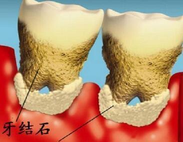 洗牙用不著去醫院 在家就能去掉牙結石 - 每日頭條