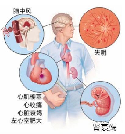 高血壓有什麼危害?高血壓不控制有什麼後果? - 每日頭條