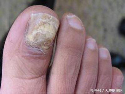 哪些食物是對治療灰指甲有效的呢 - 每日頭條
