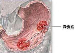 胃潰瘍 治療以及只能吃哪些食物 - 每日頭條