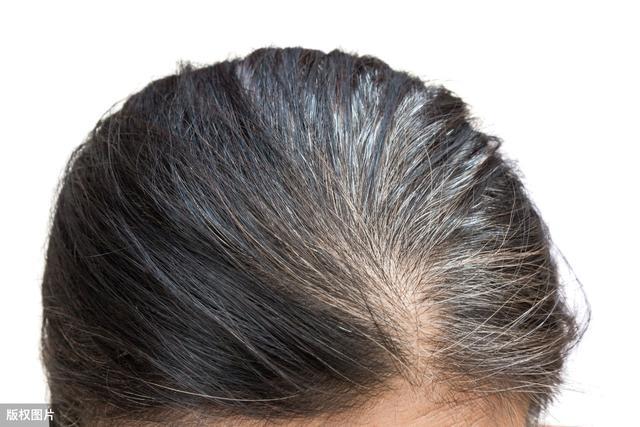 白髮很顯老?不染髮,中老年人如何擁有茂密黑髮?四個方法很有效 - 每日頭條