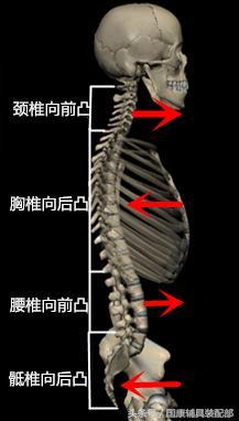 沒有科學依據治療脊柱側彎的鍛鍊方法您還在堅持嗎? - 每日頭條