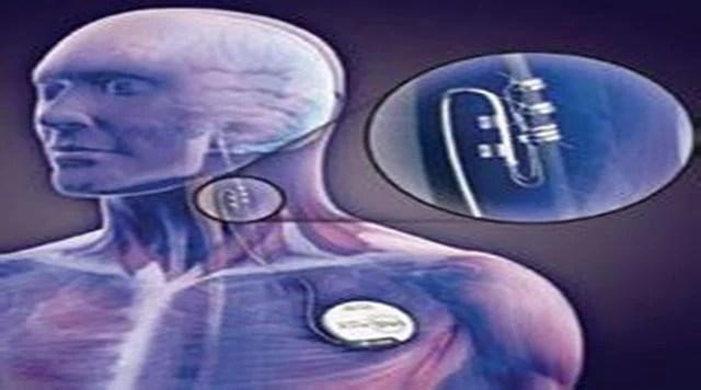 電刺激迷走神經技術(VNS):中風患者的福音! - 每日頭條
