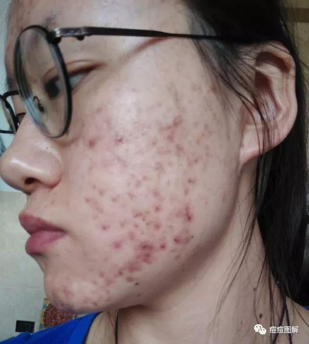 痤瘡治療案例5:囊腫性痤瘡 紅色痘印 果酸治療痘痘 - 每日頭條