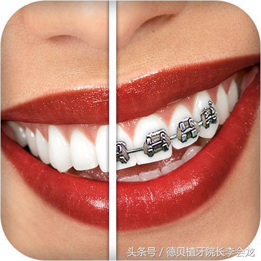 補牙需要帶牙套嗎?補牙後要裝牙套多少錢? - 每日頭條