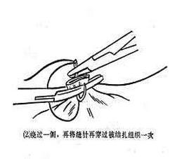 女性結紮手術全過程(附圖) - 每日頭條