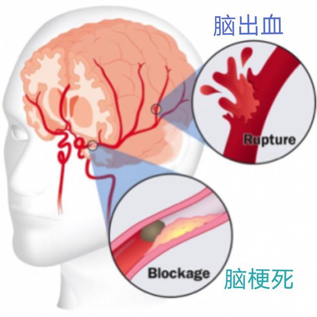 高血壓有什麼癥狀表現?對大腦的影響如何? - 每日頭條