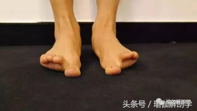 6種快速有效擺脫足部疼痛的伸展方法 - 每日頭條