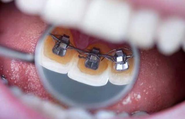 牙套價格多少錢一個 牙套有哪些種類 - 每日頭條