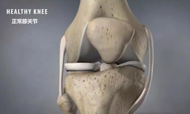 【關注老年健康】得了膝關節骨關節炎怎麼辦? - 每日頭條