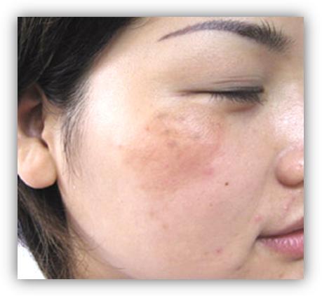 雷射祛斑結痂掉後的護理方法-康泰美 - 每日頭條