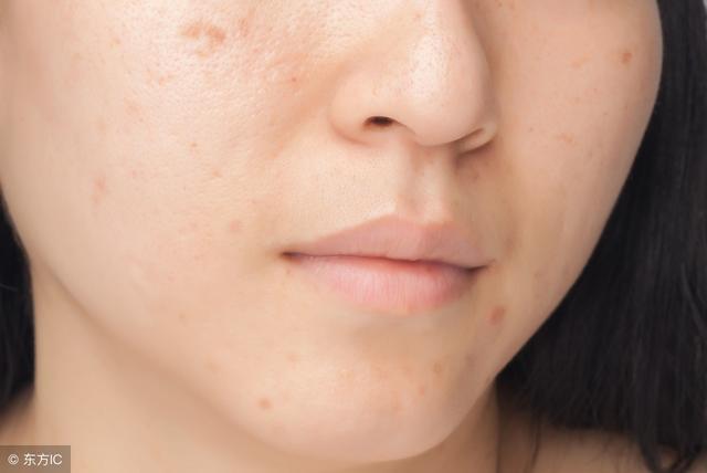 臉上有膿包痤瘡,同時還有3表現,說明皮脂腺已是蟎蟲窩 - 每日頭條