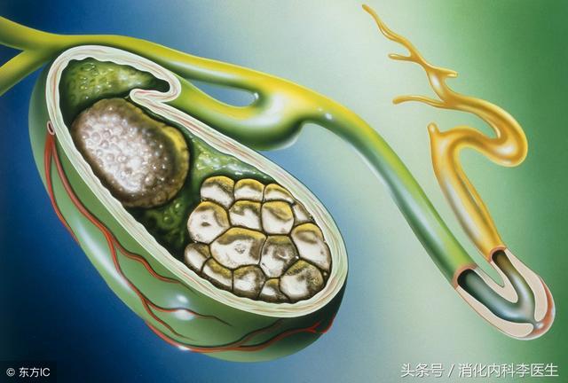 得了膽結石怎麼治療,是否需要手術?消化內科李醫生告訴你答案 - 每日頭條