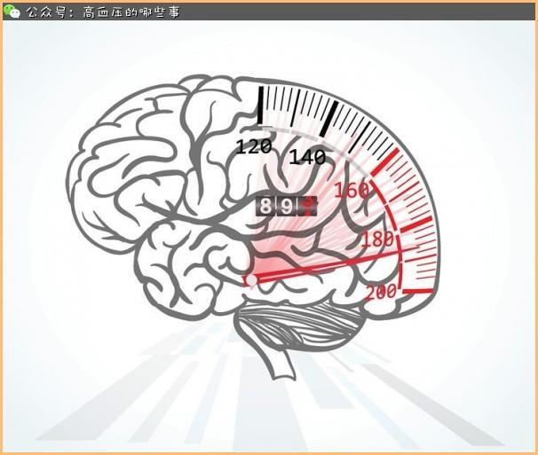 什麼是腦血管病?別等偏癱才後悔 - 每日頭條