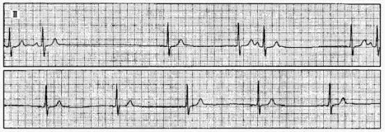 「醫生,我心臟體檢時查出竇性心律失常嚴不嚴重?」 - 每日頭條