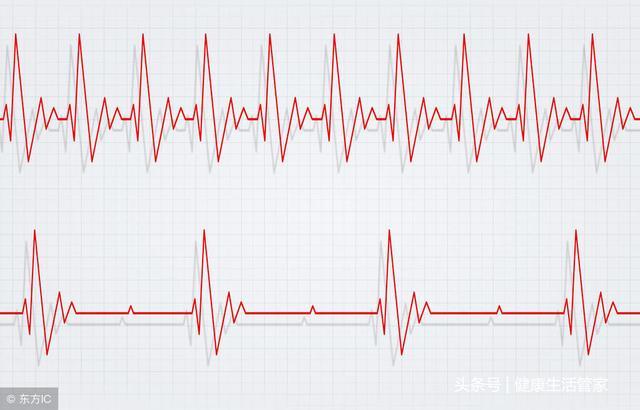 發生竇性心動過速有哪些原因? - 每日頭條